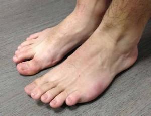 pieds2