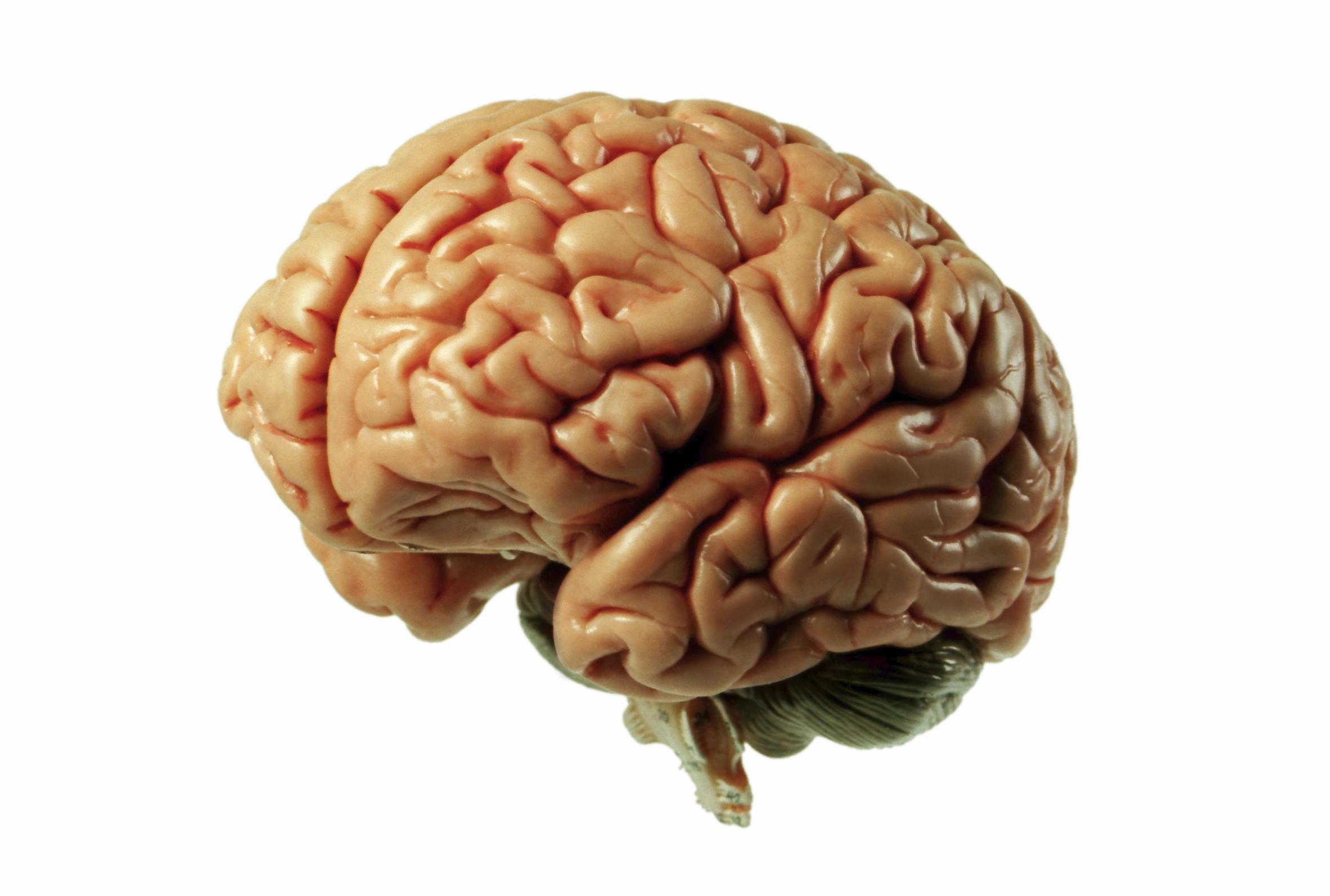 [Jeu] Association d'images - Page 12 Cerveau-humain